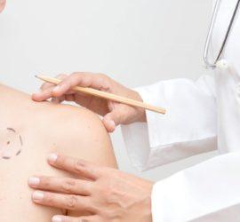 Les 5 meilleurs livres de dermatologie