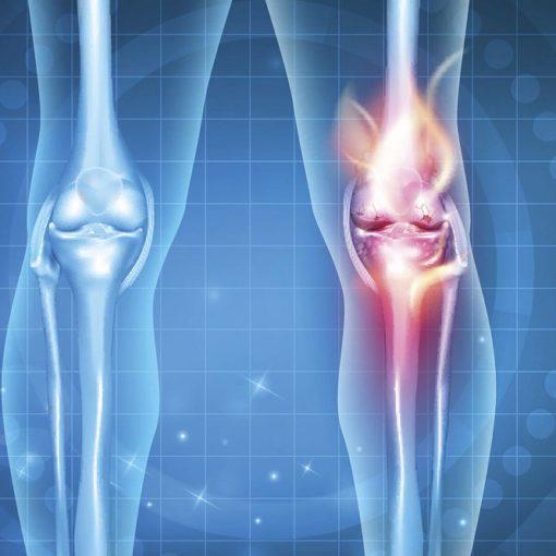 Les 5 meilleurs livres sur l'arthrose