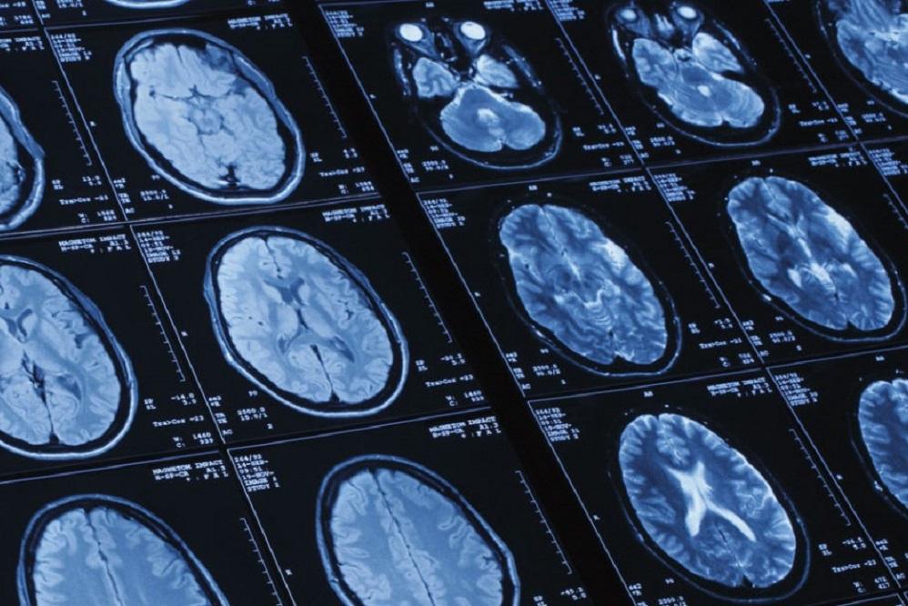 Les 5 meilleurs livres sur l'imagerie médicale