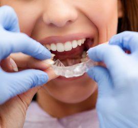 Les 5 meilleurs livres d'orthodontie