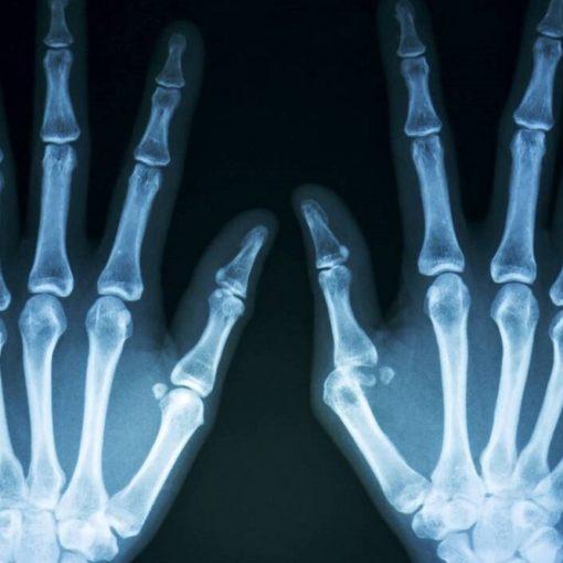 Les 5 meilleurs livres sur l'ostéoporose